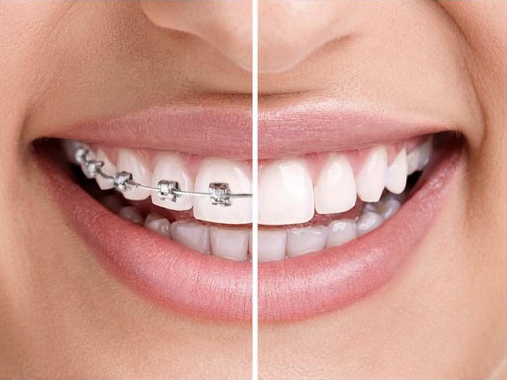 Ortodoncia ESPECIAL EN BOGOTA